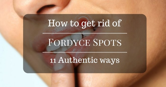 11 Authentic Ways On How To Get Rid Of Fordyce Spots And Have An